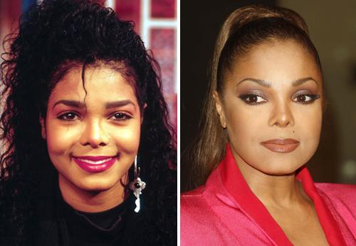 Janet Jackson avant et après chirurgie esthétique