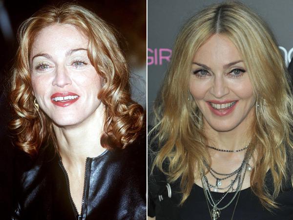 Madonna Chirurgie Esth 233 Tique Quelles Stars L Ont Fait
