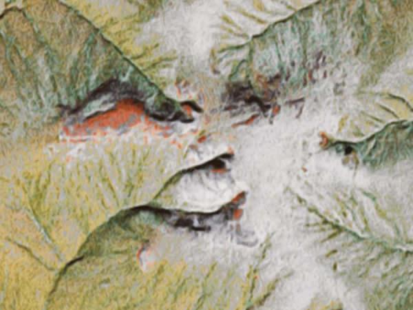 Loedème du paupières après botoksa