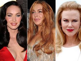 Deze sterren hadden beter geen botox gebruikt