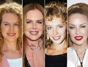 Chirurgie esthétique: quelles stars l'ont fait?