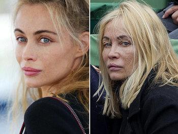 Emmanuelle Béart et la chirurgie esthétique: de la beauté naturelle au visage figé